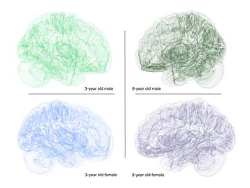 Brains develop in many shapes and sizes